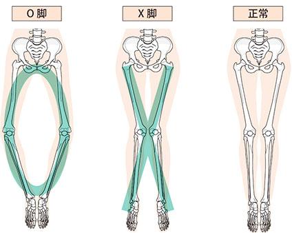 O脚、X脚、正常な脚の比較